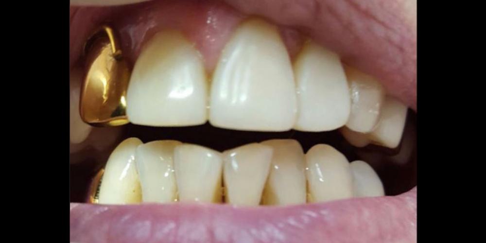 Реставрация центральных зубов без протезирования