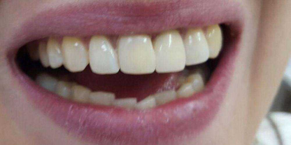Фото художественной (косметической) реставрации фронтальных зубов