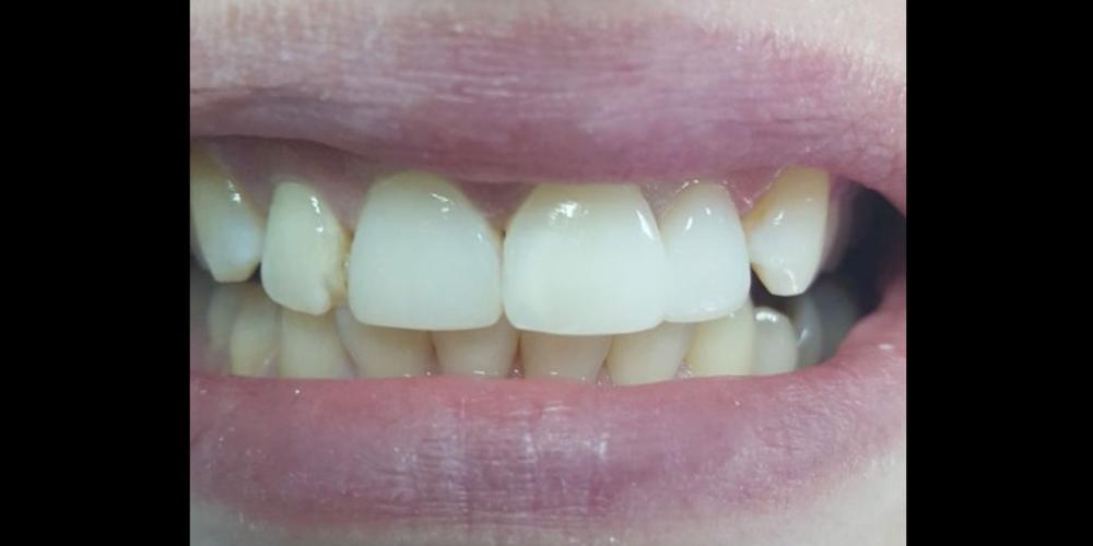 Косметическая (художественная) реставрация 2-х центральных зубов