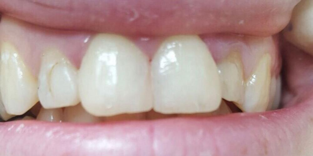 Косметическая (художественная) реставрация передних зубов