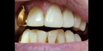 Реставрация центральных зубов без протезирования фото после лечения