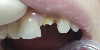 Исправление центрального зуба без протезирования за 1 час фото до лечения