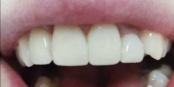Реставрация 4-х зубов была проведена в 2 посещения всего в течение 3-х часов фото после лечения