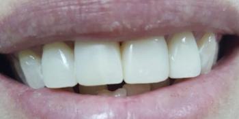 Идеальная улыбка за 2 часа фото после лечения