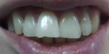 Неправильное расположение фронтальных зубов, сколов и изъявлений на режущих краях фото до лечения