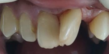 Результат эстетической реставрации 4-х зубов фото до лечения