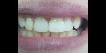 Косметическая (художественная) реставрация 2-х центральных зубов фото после лечения