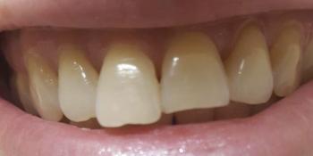 Косметическая (художественная) реставрация зуба фото до лечения