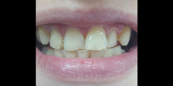 Косметическая (художественная) реставрация 2-х центральных зубов фото до лечения
