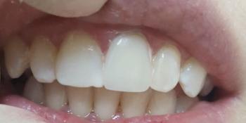 Исправление центрального зуба без протезирования за 1 час фото после лечения