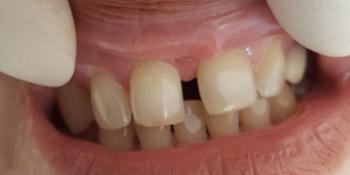 Эстетическая реставрация передних зубов, быстро и красиво фото до лечения