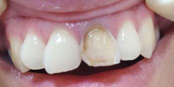 Косметическая (художественная) реставрация фронтального зуба методом прямого винирования фото до лечения