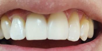 Реставрация фронтальных зубов методом прямого винирования фото после лечения