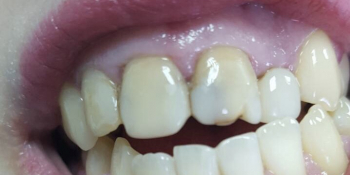 Реставрация 4-х зубов была проведена в 2 посещения всего в течение 3-х часов фото до лечения