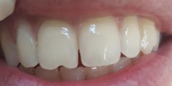 Реставрационный материал Enamel Plus, реставрация передних зубов фото до лечения
