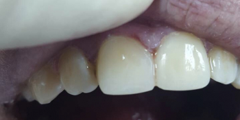 Косметическая (художественная) реставрация 2-х центральных зубов в одно посещение фото после лечения