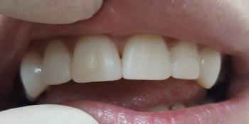 Реставрация 6-ти зубов была проведена в 2 посещения фото после лечения