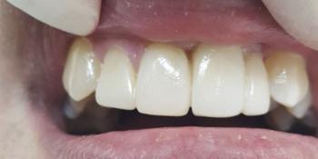 Результат эстетической реставрации 4-х зубов фото после лечения