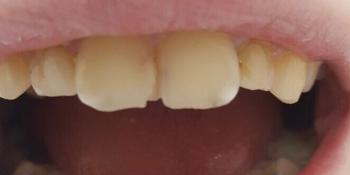 Косметическая (художественная) реставрация передних зубов фото до лечения