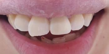 Косметическая (художественная) реставрация фронтального зуба методом прямого винирования фото после лечения