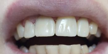 Результат эстетической реставрации 4-х зубов, материал ENAMEL PLUS фото после лечения