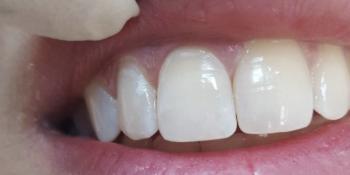 Реставрационный материал Enamel Plus, реставрация передних зубов фото после лечения