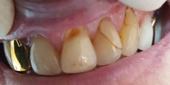 Реставрация центральных зубов без протезирования фото до лечения