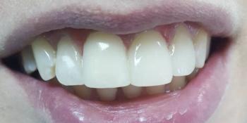Неправильное расположение фронтальных зубов, сколов и изъявлений на режущих краях фото после лечения