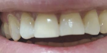 Косметическая (художественная) реставрация зуба фото после лечения