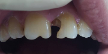 Косметическая (художественная) реставрация 2-х центральных зубов в одно посещение фото до лечения