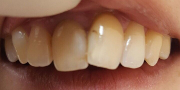 Реставрация фронтальных зубов методом прямого винирования фото до лечения