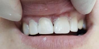 Эстетическая реставрация передних зубов, быстро и красиво фото после лечения