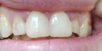 Косметическая (художественная) реставрация передних зубов фото после лечения