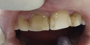 Результат эстетической реставрации 4-х зубов, материал ENAMEL PLUS фото до лечения