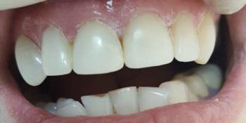 Исправление дефектов передних зубов без протезирования фото после лечения