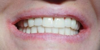 Ультраниры - тотальное протезирование фото после лечения