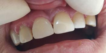 Устранение сколов и диастемы между передними зубами композитными материалами фото после лечения