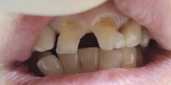 Исправление дефектов передних зубов без протезирования фото до лечения