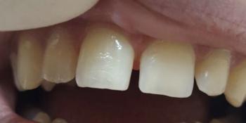 Реставрация 6-ти зубов была проведена в 2 посещения фото до лечения