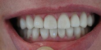 Ультраниры и коронки из керамики фото после лечения