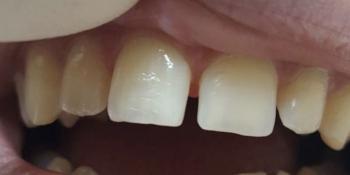 Убрали щель между передними зубами фото до лечения