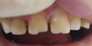 Устранение сколов и диастемы между передними зубами композитными материалами фото до лечения