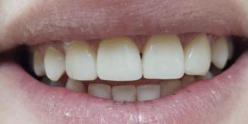 Реставрация 6-ти передних зубов без протезирования фото после лечения
