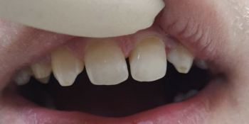 Реставрация 6-ти передних зубов без протезирования фото до лечения