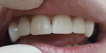 Убрали щель между передними зубами фото после лечения